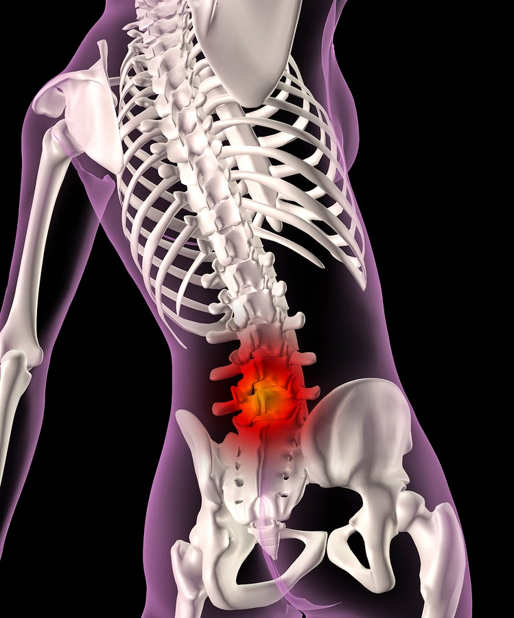 Safe Back Pain Treatment and Prevention  Mercolacom