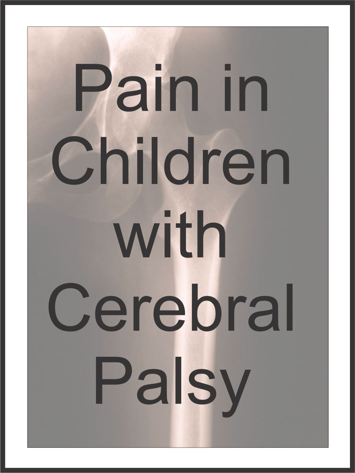 cerebral palsy case study child Gillette provides care for kids who have cerebral palsy in the part of the brain called the cerebral the precise cause of a child's cerebral palsy.