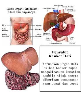 http://pusatobatherbal35.blogspot.com/2015/07/cara-mengobati-penyakit-liver.html