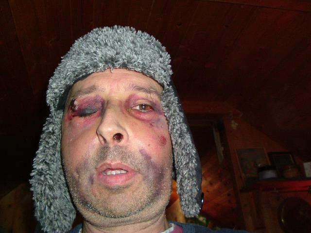 Rostro de Kevin Adams brutalemente atacado