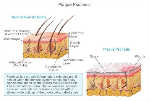 Plaque Psoriasis (Psoriasis Vulgaris) Plaque psoriasis is the most common variant, observed in about 90  of patients 2