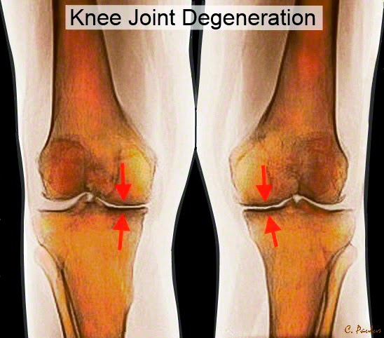 AP Knee X-Ray showing Degenerative Joint Disease of the Knee