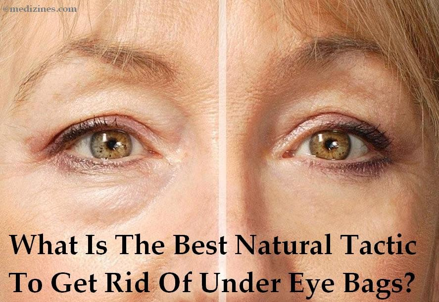 What Is The Best Natural Tactic To Get Rid Of Under Eye Bags?