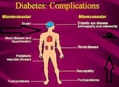 Diabetic Solution