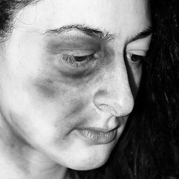 Cartas Shoshan:Carta de una muje golpeada