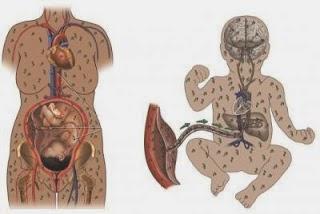 penyakit sifilis