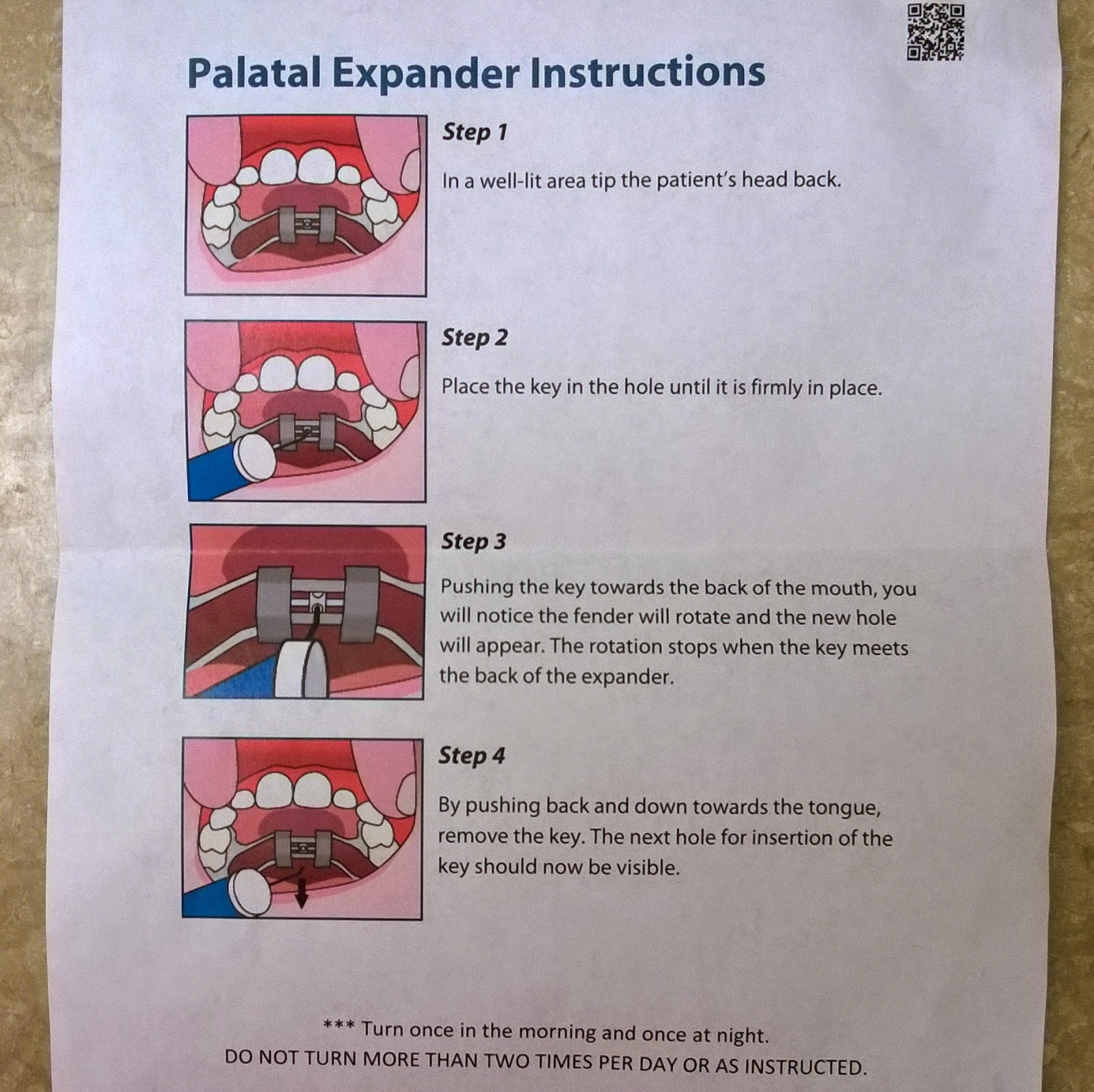 palatal expandor instructions