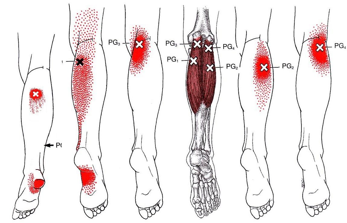 La osteocondrosis en los pies