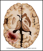 brain tumor and cancer