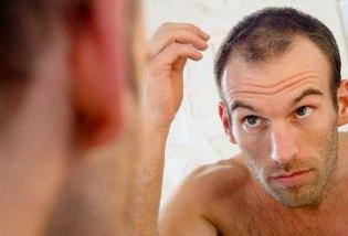 كيف تعلم انك ستصاب بالصلع في الكبر - الصلع - bald look