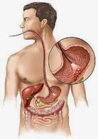 Pengobatan Tradisional Penyakit Tumor Lambung