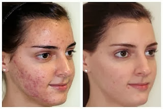 Dermabrasion with aggs for Acne Scars