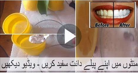 HEALTH, VIDEO, Whitenning your teeth, how to , whitening your teeth how, in minutes,