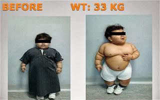 Morbidly obese BMI