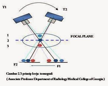 Teknik Radiologi Tomografi