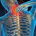 Αυχενικό σύνδρομο: Πως περνάνε οι πόνοι;