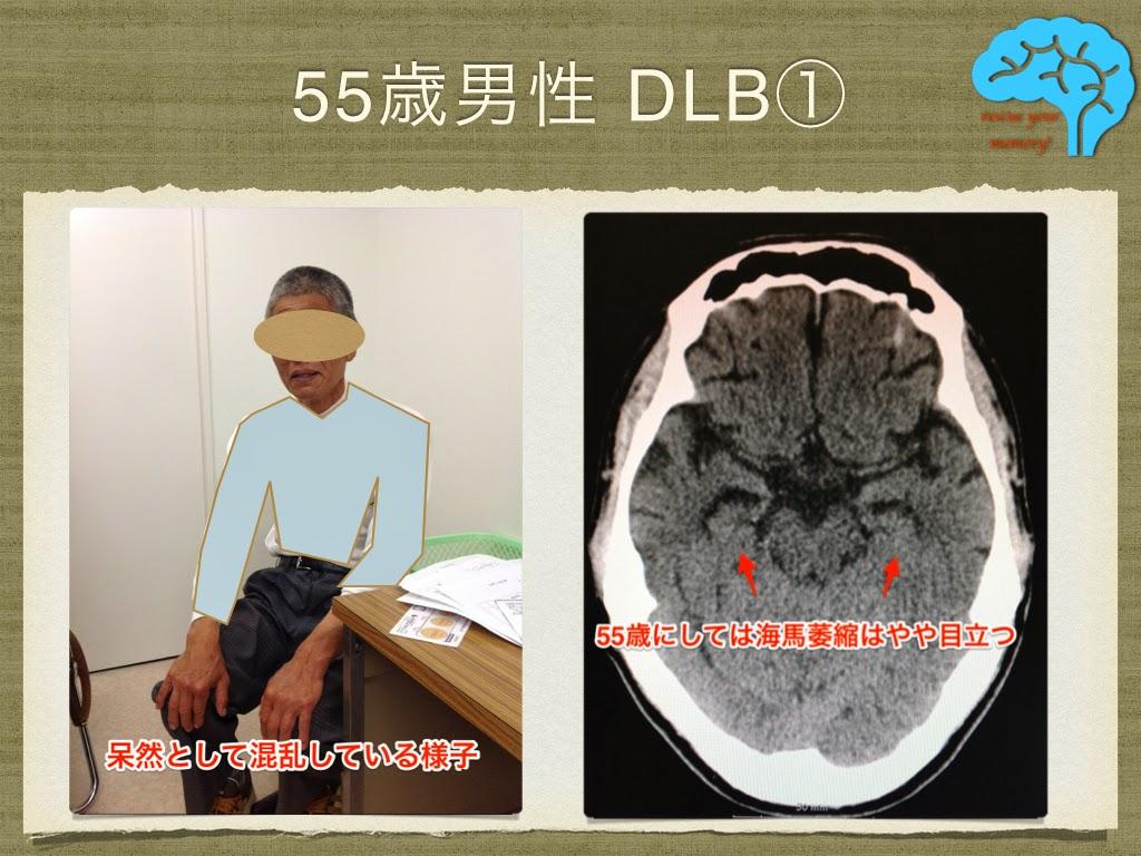 初期のレビー小体型認知症(DLB)①