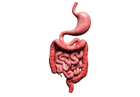 Colitis