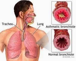 9 Jenis Penyakit Asma dan Cara Pengobatannya