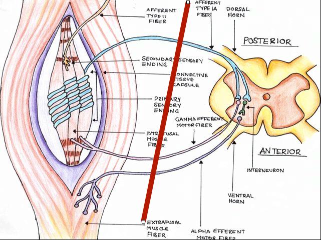 Oral maxillofacial surgery upper motor neuron lesion for Lower motor neuron diseases