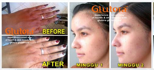 manfaat glutera untuk kulit
