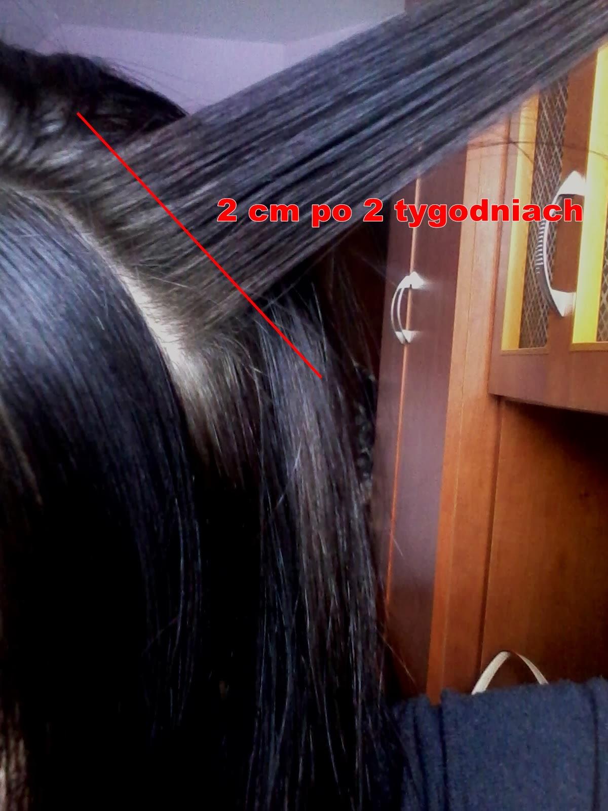 gorczyca- szybszy wzrost włosów