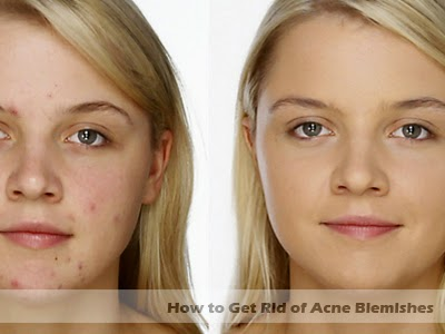 how to get rid of acne blemishes