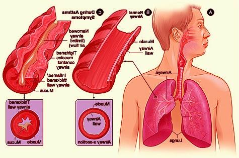 obati asma dengan agaricpro