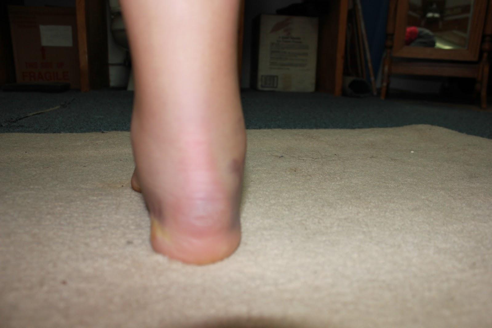 min fod er hævet