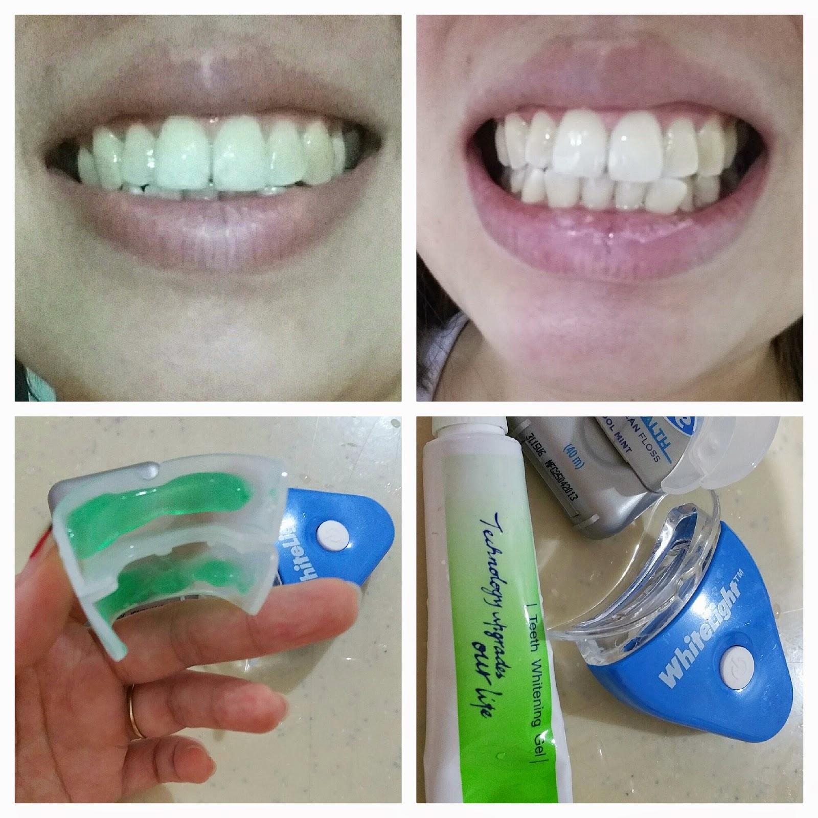 uglyfatchick review white light teeth whitening kit. Black Bedroom Furniture Sets. Home Design Ideas