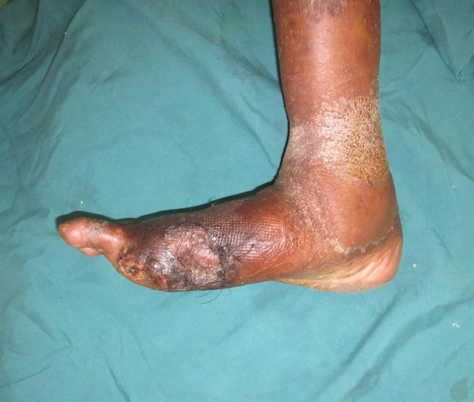 Wet Gangrene - RightDiagnosis.com