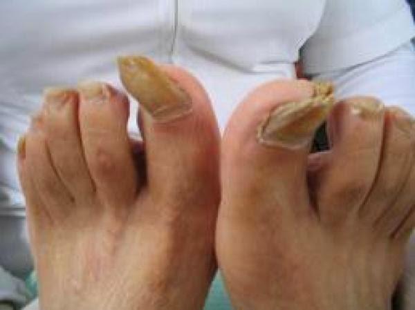 El esquema del tratamiento del hongo de las uñas