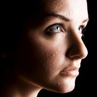 Cara mengatasi jerawat penyebab munculnya jerawat cara merawat kulit wajah