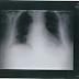 Dolor abdominal postquirúrgico (y 2, pregunta MIR)
