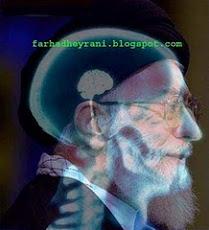 عکس رادیولوژی از سر خامنهای