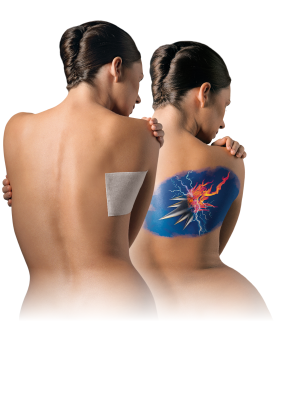 SHINGLES (HERPES ZOSTER) TREATMENT & CARE