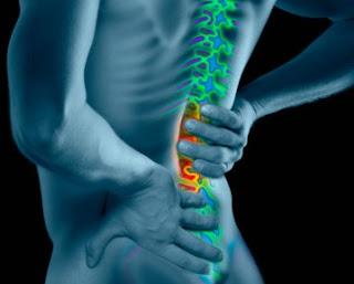 Utilizan células madre para el dolor lumbar
