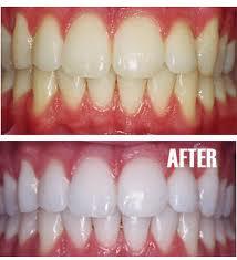 Memutihkan Gigi Lakukan Saja Dirumah Gaya Hidup Dan Kebiasaan
