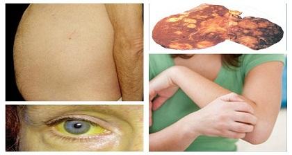 Los-síntomas-de-cáncer-de-hígado-que-usted-debe-Nunca-haga-caso-y-lo-que-puede-hacer-para-reducir-su-riesgo.