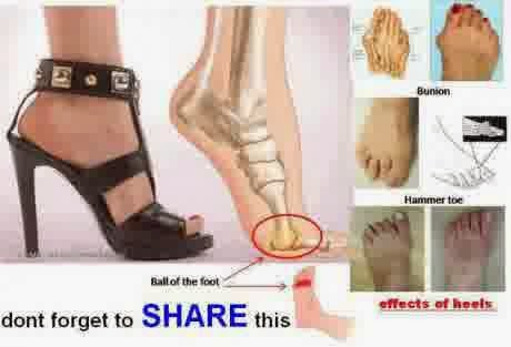 Mengenakan Sepatu Bertumit Tinggi Memberi Akibat Pada Masalah Rusaknya Tulang Serta Persendian