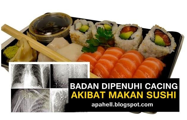 Seluruh Badan Dipenuhi Cacing Pita Akibat Makan Sushi (2 Gambar)  http://apahell.blogspot.com/2014/09/seluruh-badan-dipenuhi-cacing-pita.html