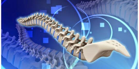 6 Hal Sepele Yang Bisa Merusak Tulang