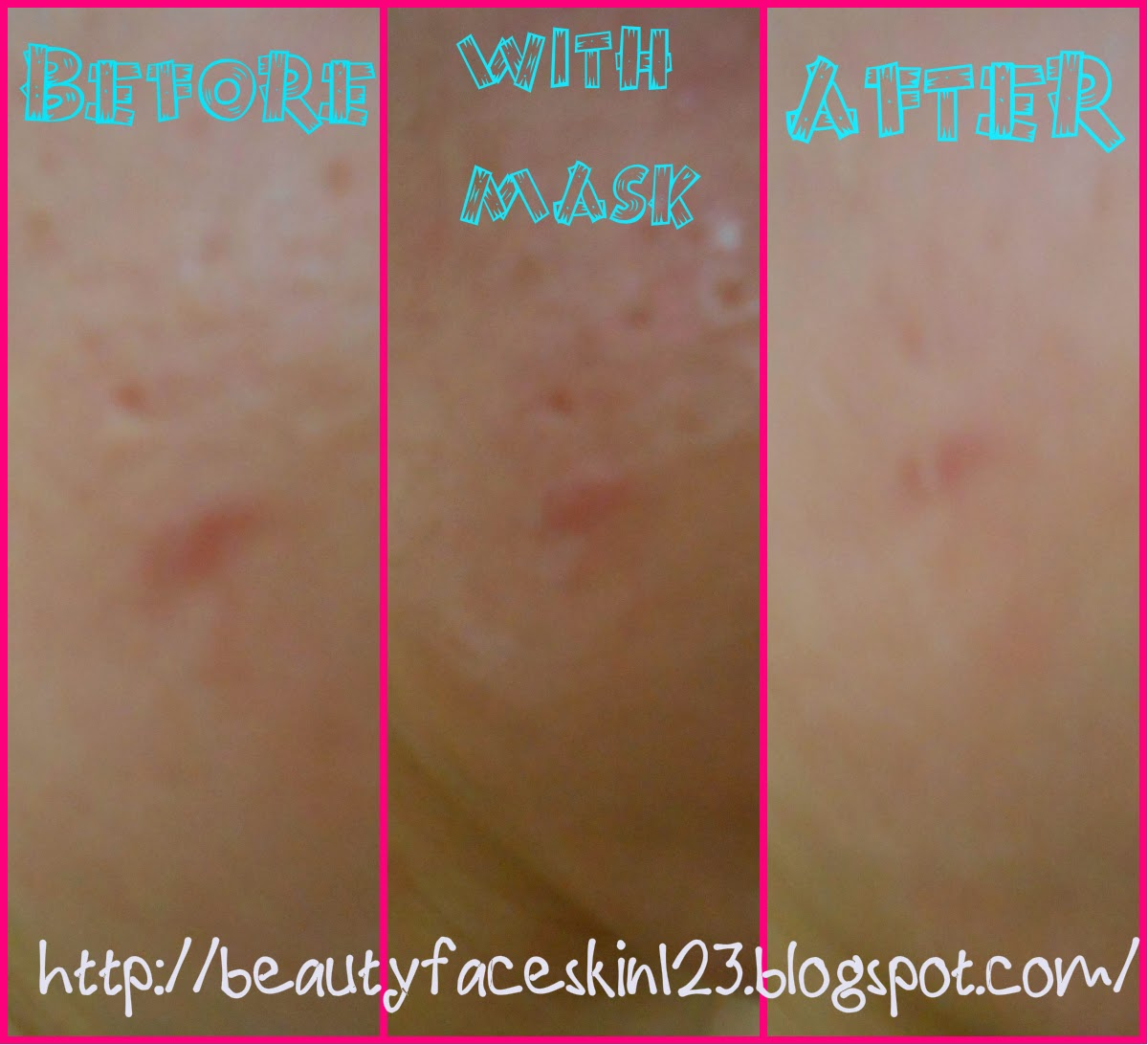 Alcohol for acne scars Alcohol for acne prone skin images