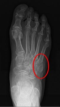 Cirugia del pie y tobillo y traumatolog a general for Cuarto y quinto metatarsiano