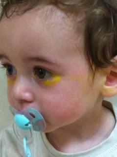 Tras aplicar el colirio, estuvo llorando amarillo dos dias, pobrecito.