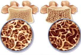 Pengobatan alternatif osteoporosis yang ampuh