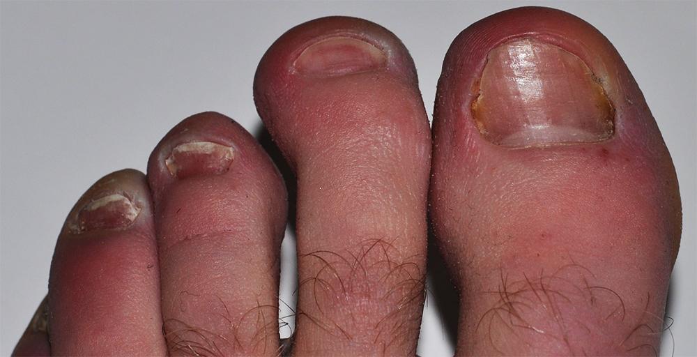 bilder på nagelsvamp
