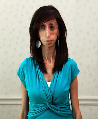 ugliest woman in the world Lizzie Velasquez.
