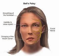 sakit bell's palsy