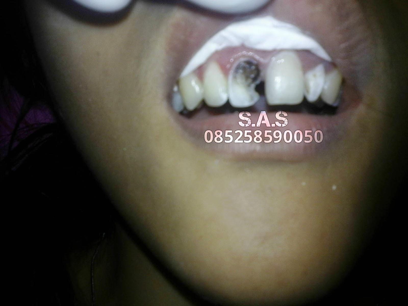 Cara Tukang Gigi S A S Mengembalikan Gigi Berlubang Hitam Dan
